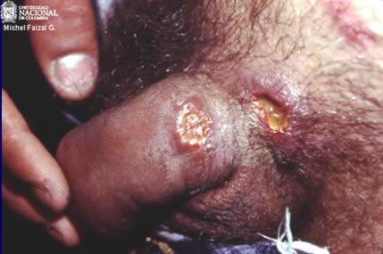 Úlceras por chancroide. Imagen: Universidad Nacional de Colombia
