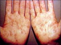 Sífilis secundaria. Imagen: NLM de Estados Unidos