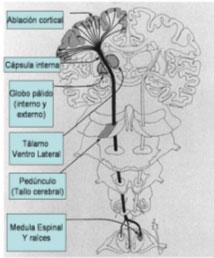 Figura 1. Esquema que representa el encéfalo y tallo cerebral. Se muestran diferentes tipos de lesiones que se relacionaron con diferentes períodos históricos en la cirugía de los trastornos del movimiento.