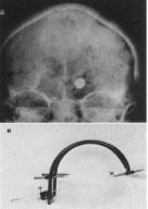 Figura 3. A, Rx de cráneo (ántero-posterior) donde se observa imagen contrastada (flechas) perteneciente a un balon intracerebral en la proyección de los GB. B, Sistema estereotáctico de Cooper .