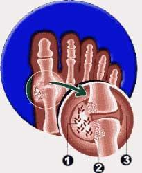 acido urico medicamento homeopatico acido urico bajo acido urico alimentos que lo causan