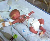Niño prematuro con ventilación