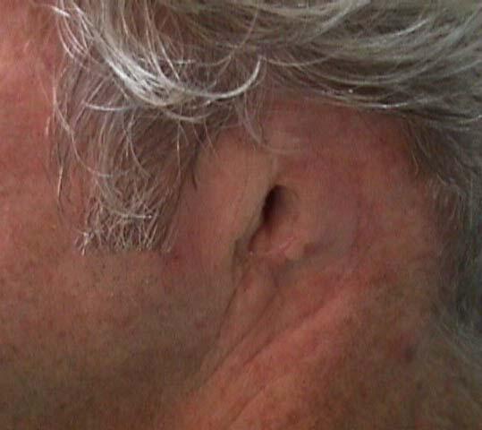 Ausencia del pabellón auricular