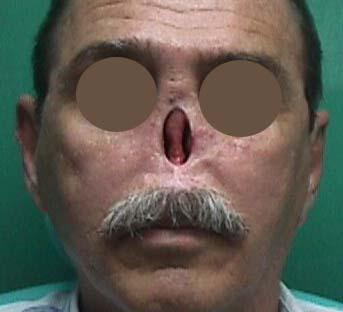 Paciente tributario de prótesis nasal